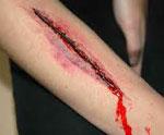 Рана сонник